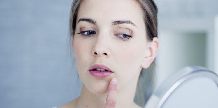 Comment savoir si on a la peau sèche