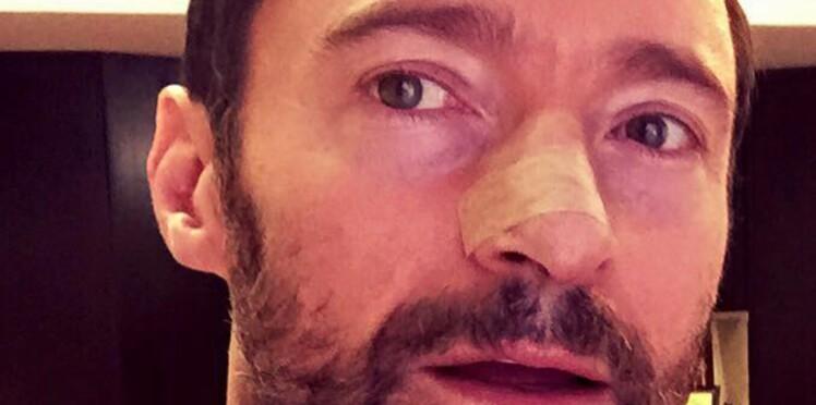 Hugh Jackman : il publie des photos suite à la récidive de son cancer