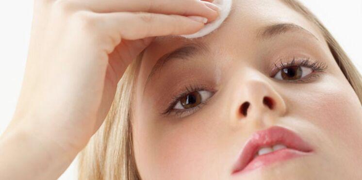 Ados : l'acné n'est pas une fatalité