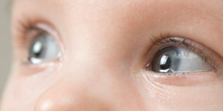 Bébé a toujours les yeux qui pleurent : que faire ?