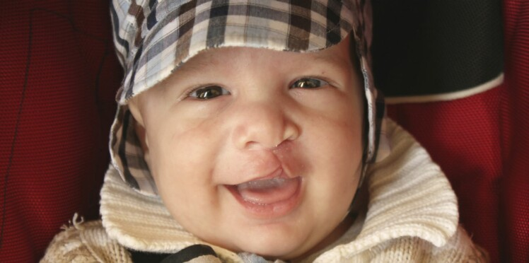 Fente labio-palatine: tout savoir sur le bec-de-lièvre