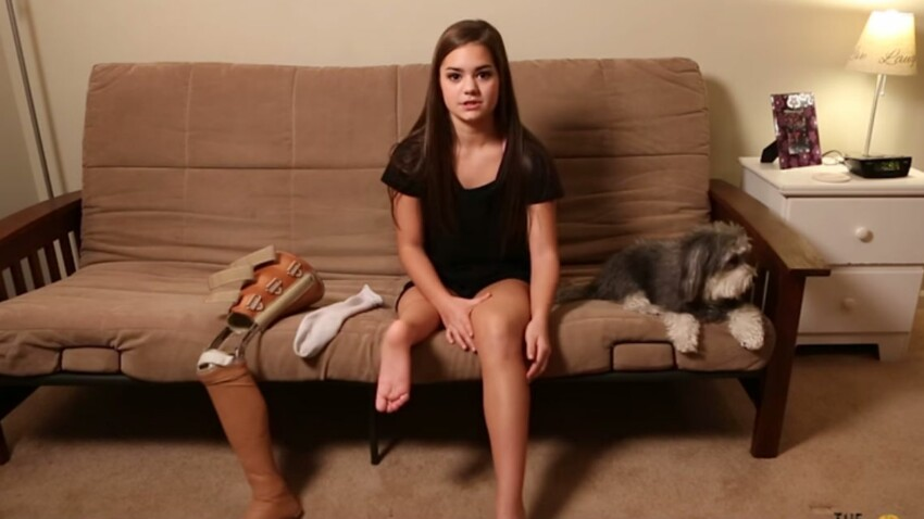Une fillette atteinte d'un cancer se fait greffer un pied au niveau du genou