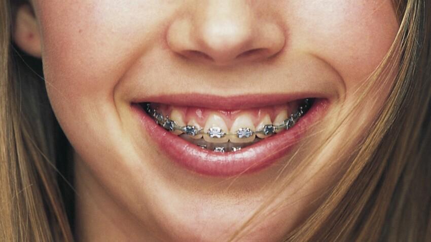 Les différents appareils dentaires pour enfants