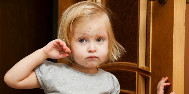 Les complications de la varicelle chez l'enfant