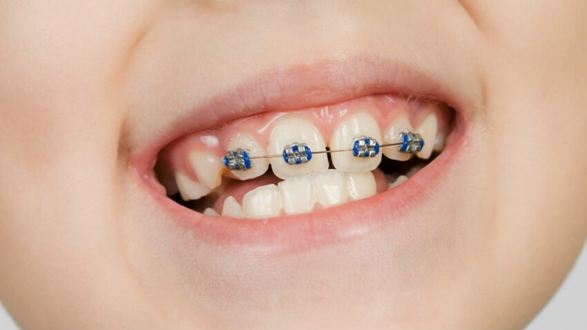 Quand emmener son enfant chez l'orthodontiste ? Les signes qui ne trompent pas