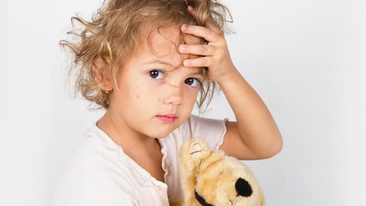 Rougeole : comment prévenir ou soigner cette maladie contagieuse ?