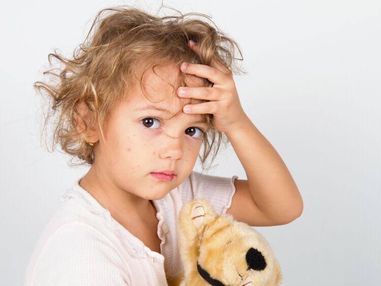 Rougeole Comment Prevenir Ou Soigner Cette Maladie Contagieuse