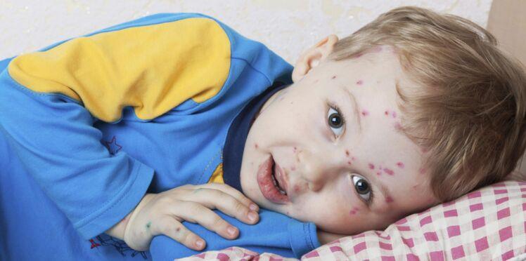 Traiter la varicelle avec l'homéopathie