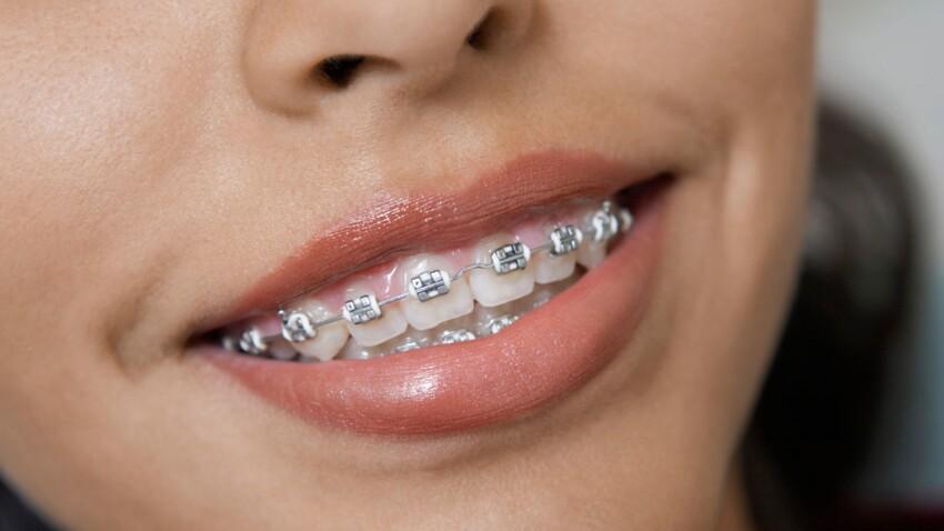 Adolescents : gare aux appareils dentaires faits-maison !