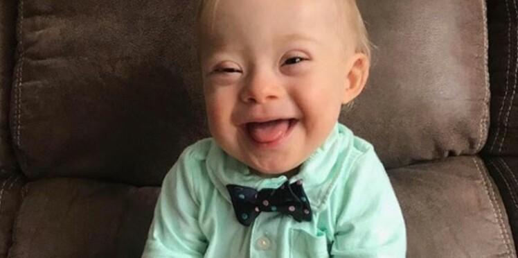 Un bébé atteint de trisomie, nouvelle égérie de Gerber