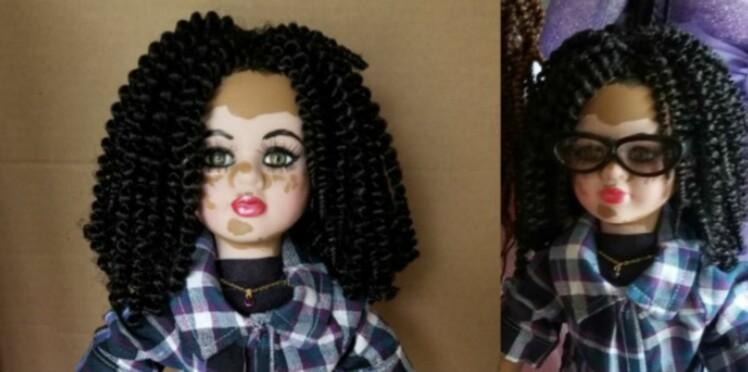 Ces poupées atteintes de vitiligo vont aider les enfants touchés par cette maladie