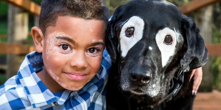 Grâce à ce chien, un petit garçon atteint de vitiligo a retrouvé confiance en lui