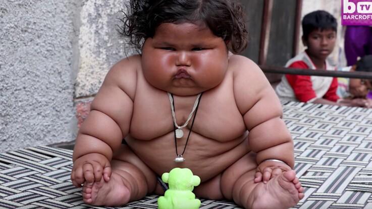 Cette petite Indienne de 8 mois pèse le poids d'un enfant de 4 ans