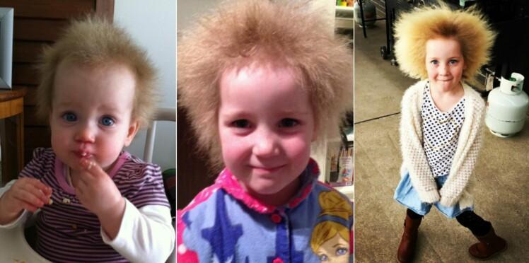Syndrome des cheveux incoiffables : on vous explique ce que c'est