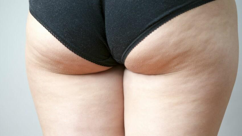 Cellulite : comment s'en débarrasser en 5 étapes