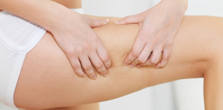 Quel est mon type de cellulite et la méthode la plus adaptée pour l'éliminer ?