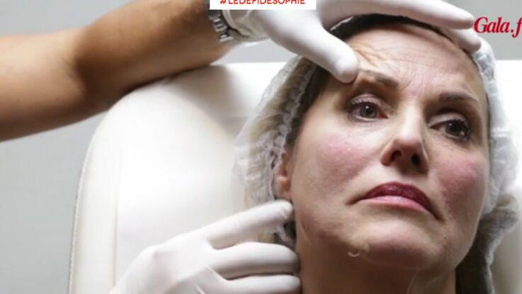 Pour paraître plus mince, Sophie Favier tente la médecine esthétique (vidéo)