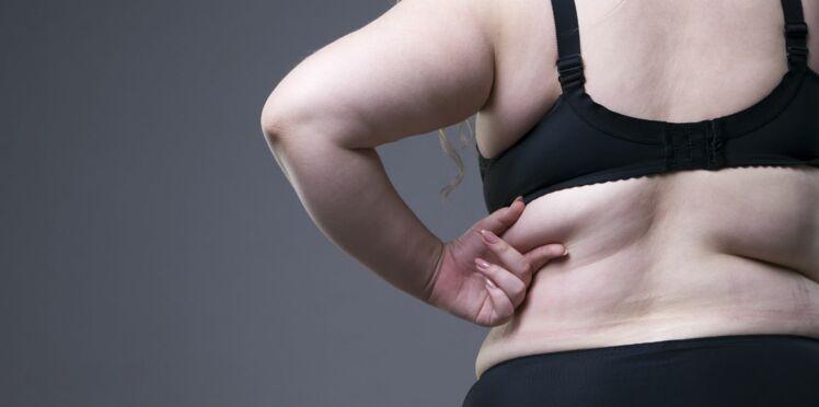 Chirurgie de l'obésité : tout savoir sur la sleeve gastrectomie