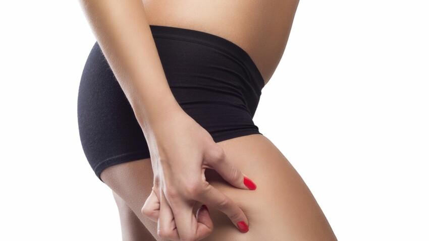 La cellu-cup, remède anti-cellulite : on a testé pour vous !