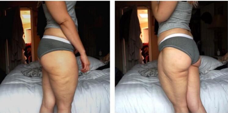 #CelluliteSaturday : quand les femmes affichent leur cellulite sans complexe