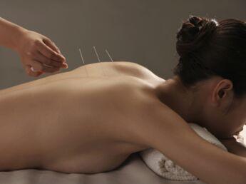 On a testé l'acupuncture pour mincir