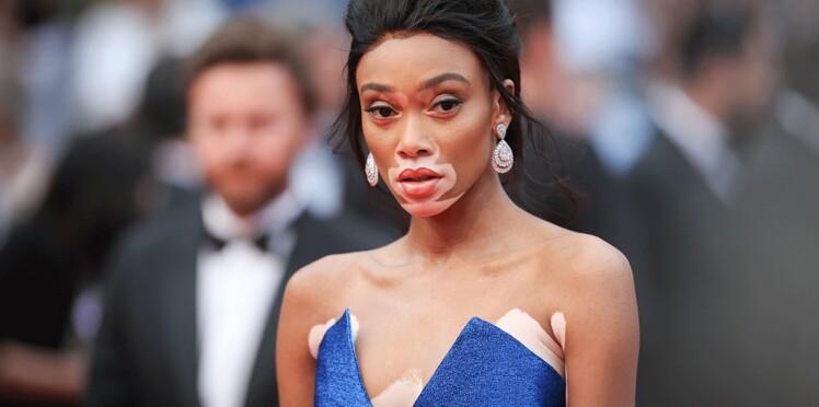 Un mannequin atteint de vitiligo sur tout le visage, Winnie Harlow, a fait sensation à Cannes
