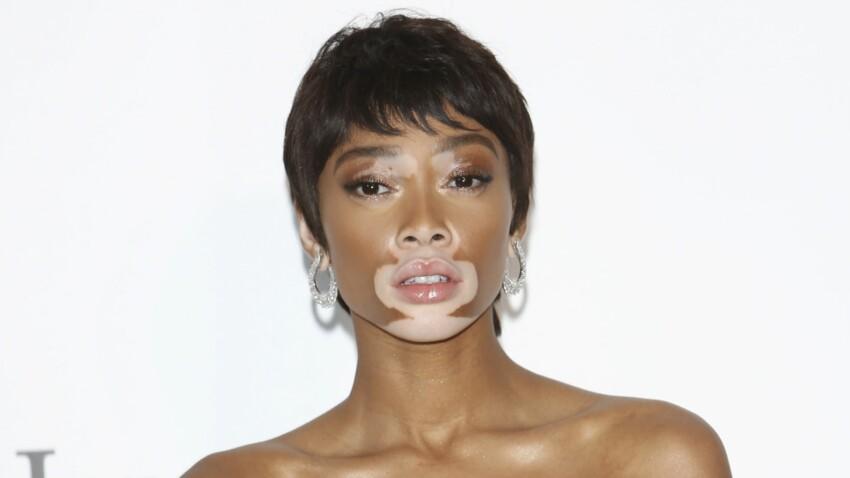 Découvrez le corps surprenant de la mannequin Winnie Harlow, atteinte de vitiligo, qui se dénude sur Instagram