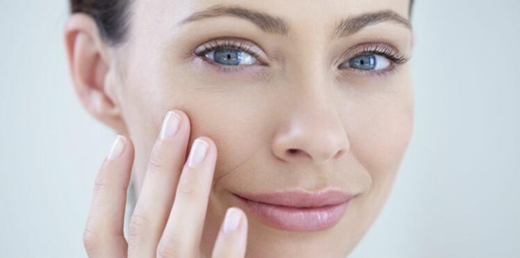 Les solutions douces contre l'acné