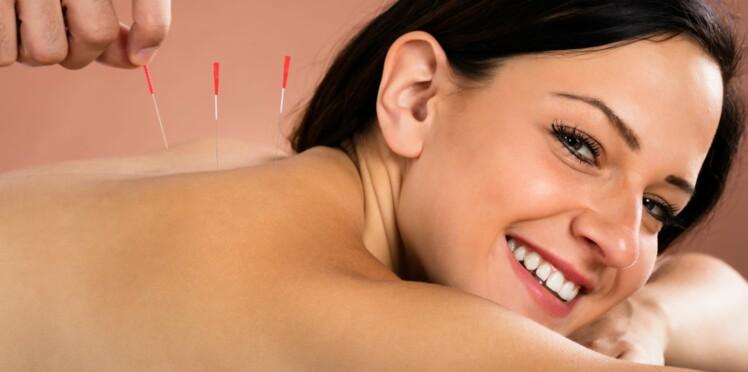 Acupuncture : 7 choses importantes à savoir