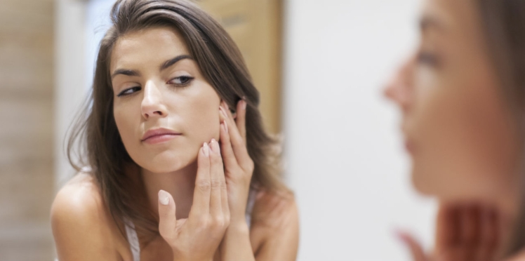 Boutons d'acné : toutes les solutions naturelles