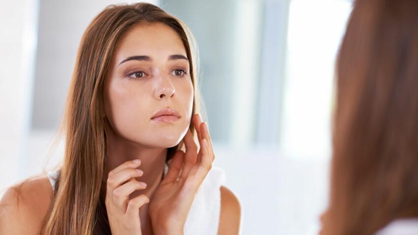 Naturopathie : conseils pour une plus jolie peau