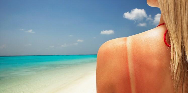 Les solutions naturelles en cas de coup de soleil