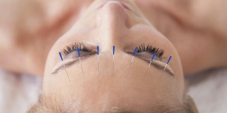 Vaincre le stress avec l'acupuncture