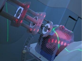 La radiothérapie, ça consiste en quoi ?