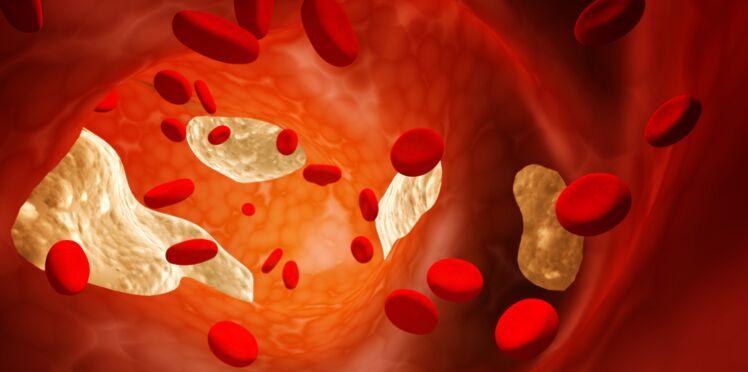 L'acide urique, efficace suite à un AVC chez la femme