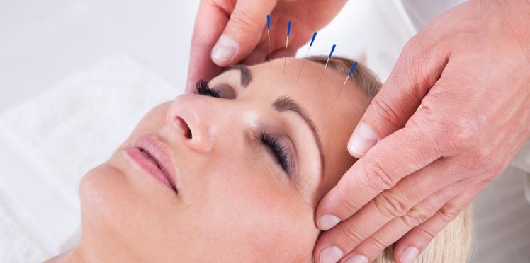 L'acupuncture réduirait la fréquence des migraines