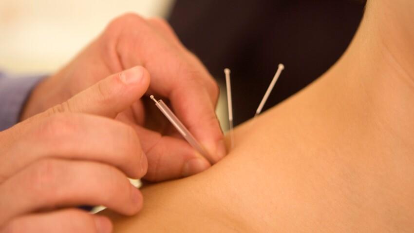 L'acupuncture, efficace contre les troubles de la mémoire ?