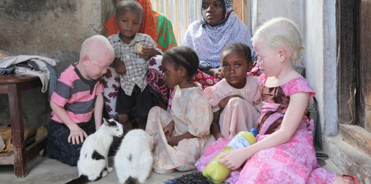 Un adolescent albinos mutilé, son cerveau disparu