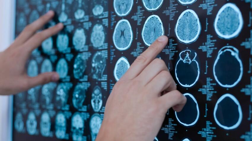 Alzheimer : des chercheurs pensent avoir trouvé un signe précoce de la maladie