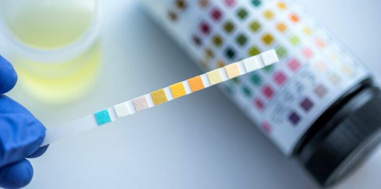 Alzheimer : un simple test d'urine pour détecter les risques