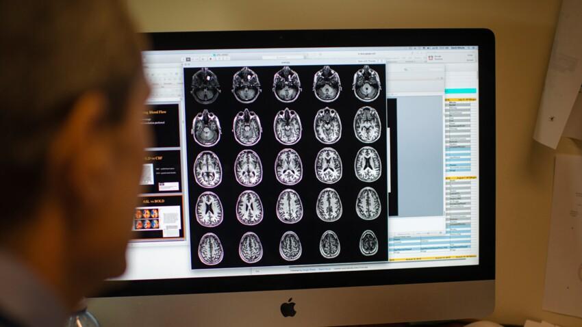 Autisme : il pourrait être repéré par IRM dès l'âge de deux ans