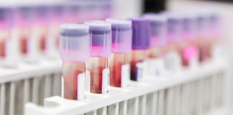 En un an, près de 140 000 autotests VIH auraient été vendus