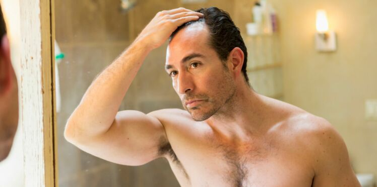 Calvitie : un traitement contre l'ostéoporose favoriserait la repousse des cheveux