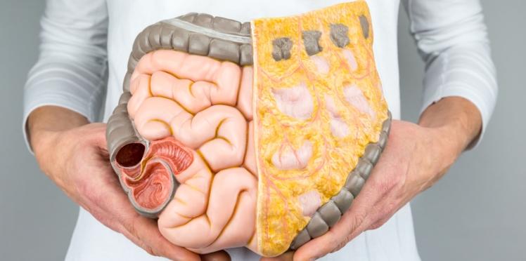 Cancer colorectal : après 50 ans, le dépistage peut vous sauver la vie