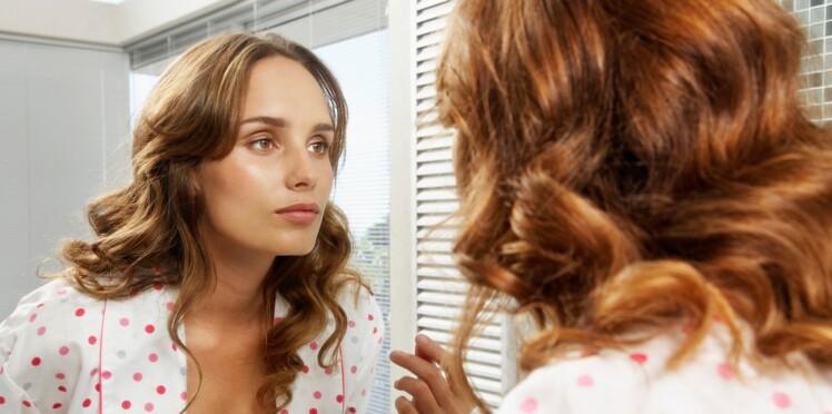 Cancer de la peau: les roux seraient plus à risque