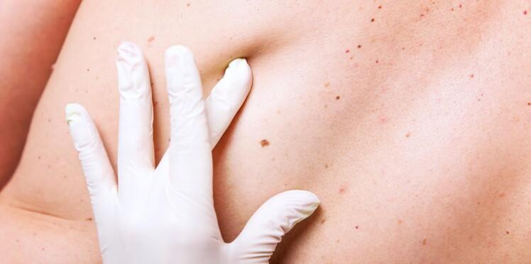 Cancer de la peau : une molécule tueuse de mélanomes