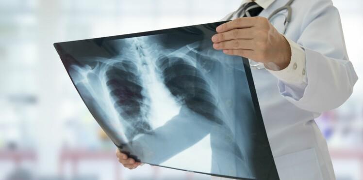 Cancer du poumon : une cagnotte en ligne pour financer la recherche