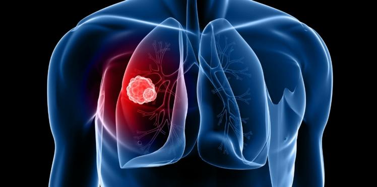 Cancer du poumon : une nouvelle thérapie a permis de bloquer la progression de la maladie