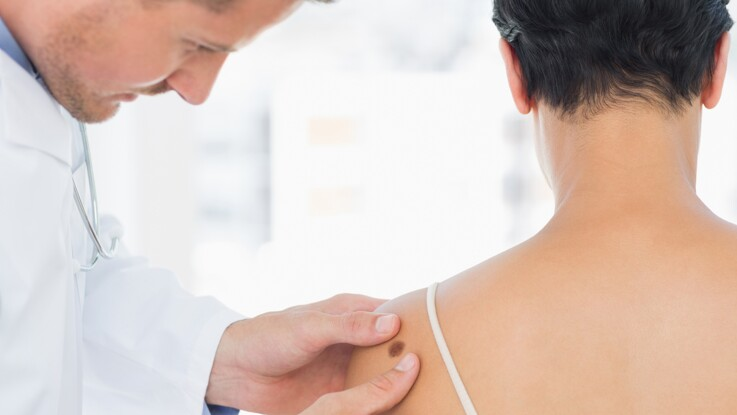 Cancer de la peau : des dépistages gratuits du 14 au 18 mai