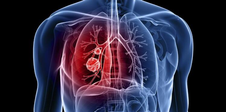 Cancer du poumon : un diagnostic simplifié